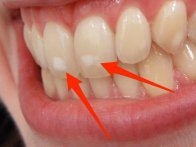 white spots teeth